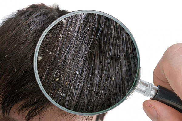 https://www.hairadvisor.co/wp-content/uploads/2020/01/dandruff.jpg