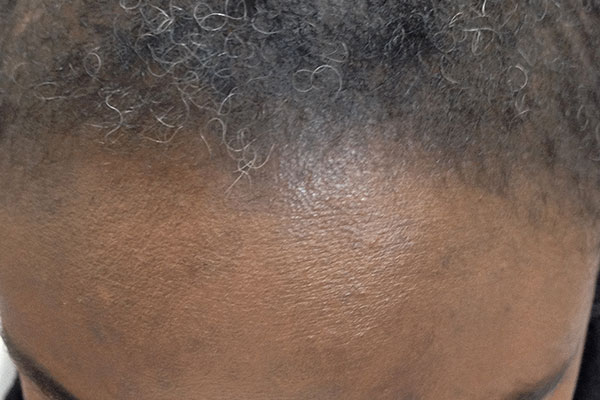 https://www.hairadvisor.co/wp-content/uploads/2020/01/traction-alopecia.jpg